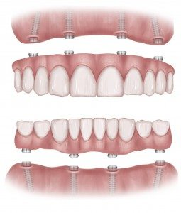 Drawing of Full Mouth Dental Implants and Attachments