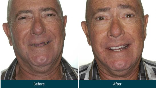 Patient 1 Before and After All-on-4® Treatment